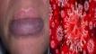 ঠোঁটের রঙ বদলে যাওয়া সহ করোনায় দেখা দিলো নতুন ১৩টি উপসর্গ!